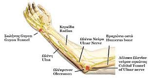 Carpal and Cubital Syndrome