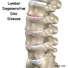 Lumbar Disc Syndrome