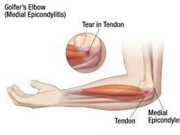medial epicondylitis impairments motion pronation